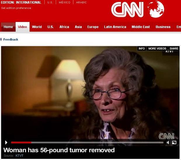 Joy Self tinha um tumor de 25 kg na barriga (Foto: Reprodução/CNN)