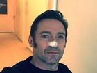 Hugh Jackman trata de novo câncer de pele: 'Tudo está bem, eu juro!'