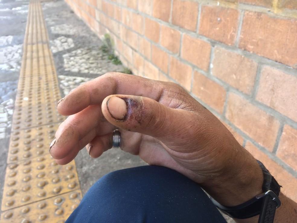 Carroceiro diz que policiais machucaram dedos dele (Foto: Paula Paiva/G1)