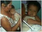 Bebê é queimado enquanto dormia com a mãe na varanda de casa, em RR
