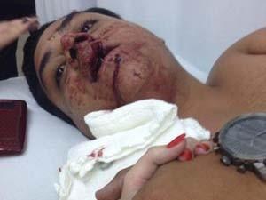 Jovem foi levado desacordado para hospital após crime (Foto: Camila Mota/Divulgação)