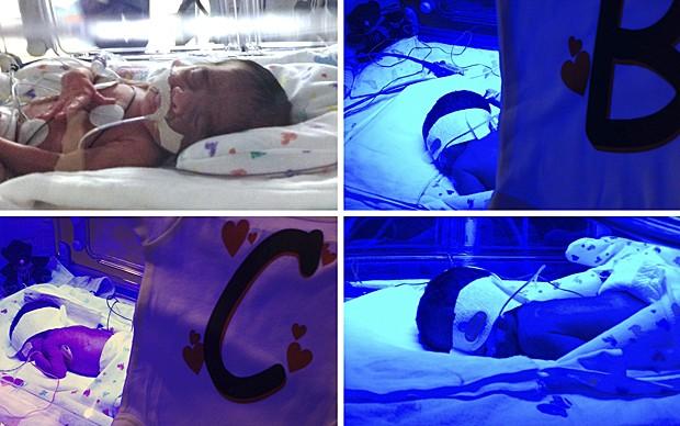 Dois pares de gêmeos idênticos  (Foto: Hospital da Mulher do Texas/Reuters)