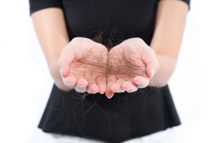 Alguns cuidados diários podem amenizar a queda dos fios deixando-os mais saudáveis (Foto: Divulgação)