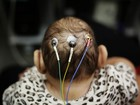 Microcefalia: casos confirmados chegam a 1.434 no país, diz ministério
