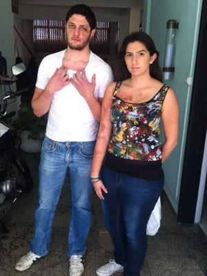 Casal diz que não pretende cobrar agressor (Foto: Kléber Tomaz/G1)