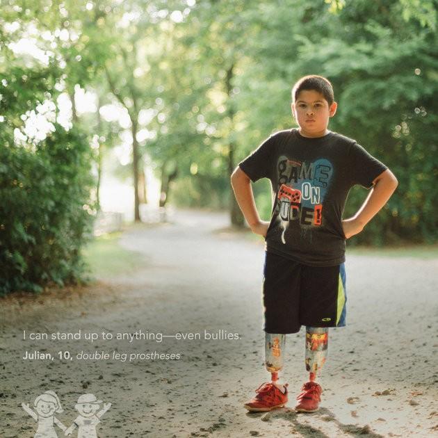 """""""Consigo enfrentar qualquer coisa - até bullies"""". Julian, 10 anos, próteses nas duas pernas. (Foto: KATE T. PARKER/CHOA)"""