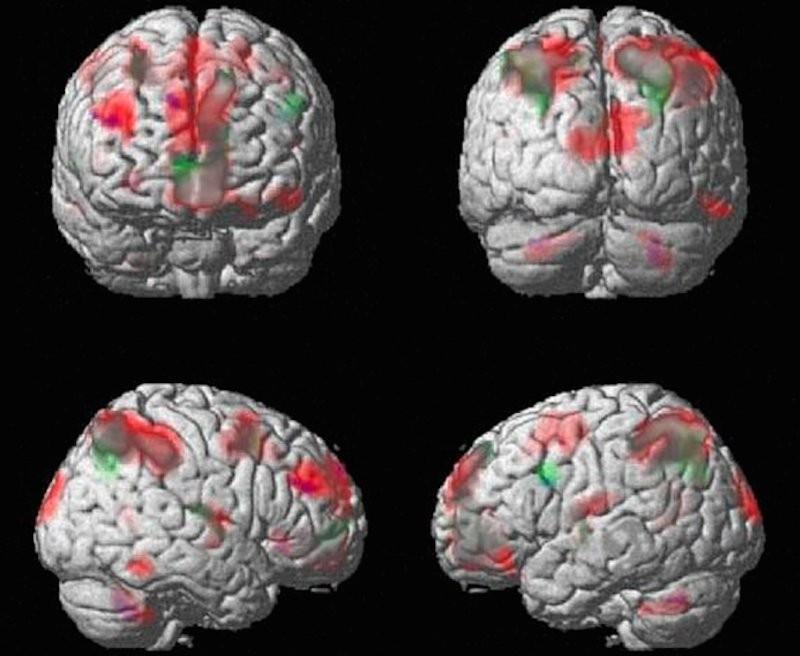 Veja como as drogas alteram o funcionamento do cérebro
