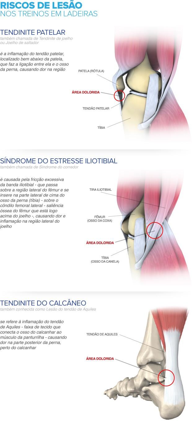 euatleta - lesões de subida (Foto: Editoria de Arte / GLOBOESPORTE.COM)
