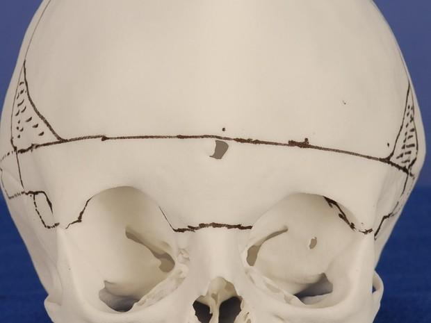 Molde de crânio com marcações para orientar cirurgião (Foto: Divulgação/Enrico Ghizoni)