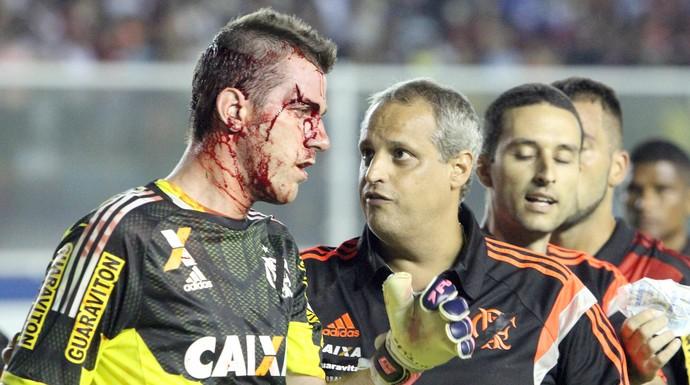 Paulo Victor, do flamengo, sangue no jogo contra o macaé (Foto: Tiago Ferreira / Macaé Esporte)