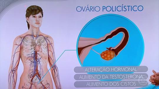 Problemas hormonais podem dar sinais pelo corpo