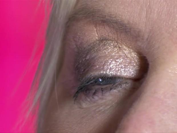 Cirurgia foi feita em 2012 e paciente tem medo de perder a visão (Foto: BBC Brasil)