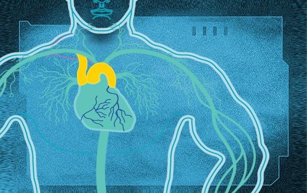 Anabolizantes coração euatleta (Foto: Editoria de Arte/Eu Atleta)