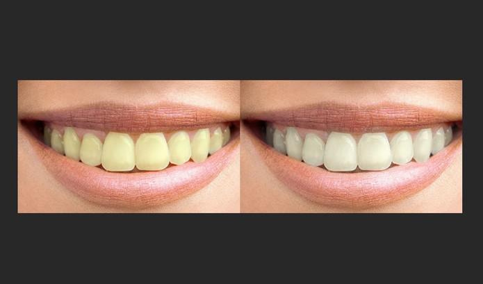 Diferença com os dentes amarelados e com o efeito clareador do Photoshop (Foto: Reprodução/Barbara Mannara)