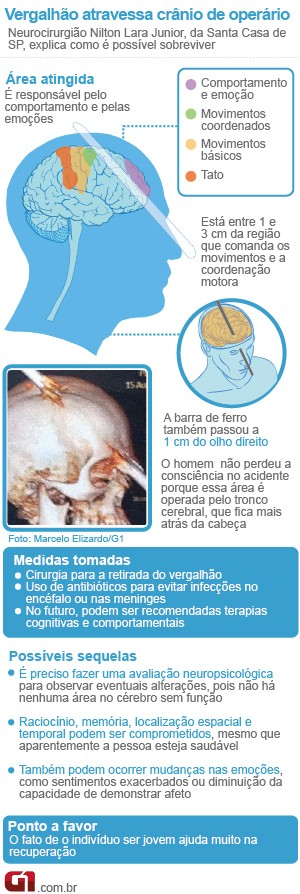 Info cirurgia vergalhão rio (Foto: Arte/G1)
