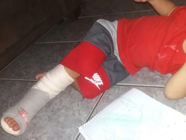 Menino de 2 anos com gesso no pé direito após ter o esquerdo engessado por engano em Piracicaba (Foto: Arquivo pessoal)