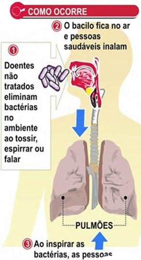 Transmissão da tuberculose pelo ar  (Foto: Ministério da Saúde)