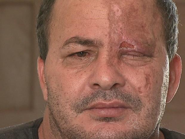 'É um descaso com o ser humano', diz Francisco Azevedo sobre atendimento que teria recebido em UPA de Rio Branco (Foto: Reprodução TV Acre)