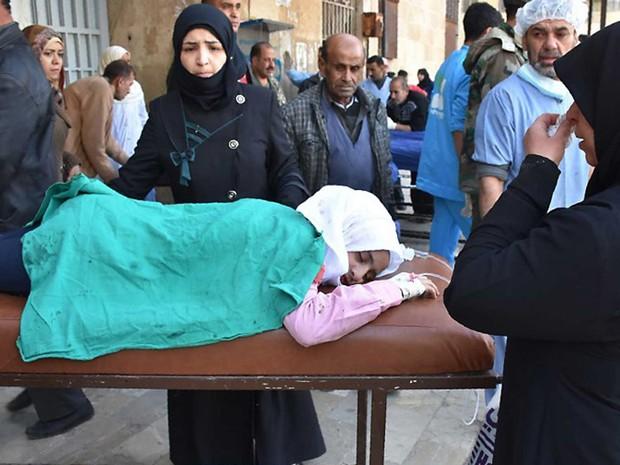 Menina ferida em ataque em área controlada pelo regime de Bashar al-Assad neste domingo (20)  (Foto: George Ourfalian / AFP)