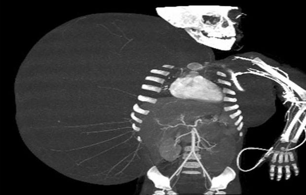Imagem de raio X mostra o tumor que se desenvolveu na lateral do corpo do menino Jesús Rodríguez, de 2 anos (Foto: AP/IMSS)