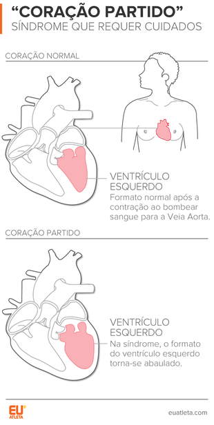 EuAtleta INFO Ventrículo Esquerdo Síndrome do Coração Partido (Foto: Eu Atleta)