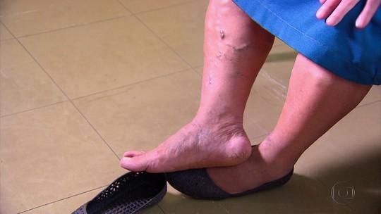 Médicos da UFPE encontram ligação entre anemia e varizes