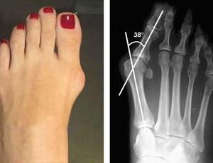 De sandalia salto vermelha da marca werner - 3 part 5