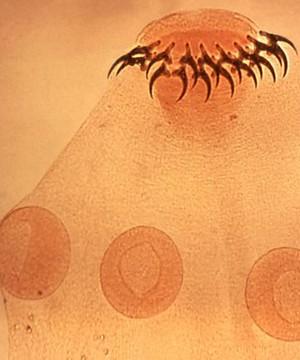 Vermes provocam doenças perigosas (Reprodução/UERJ)