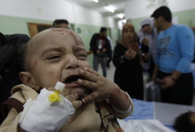 Criança ferida em bombardeios israelenses contra Gaza chora em hospital em Beit Lahia neste sábado (17) (Foto: AFP)