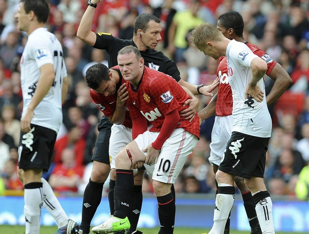 Rooney machucado Manchester United (Foto: EFE)