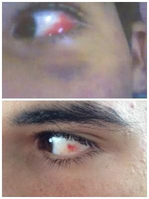 Jovem diz que foi agredido por segurança de supermercado em Aparecida de Goiânia (Foto: Adriano Zago / G1)
