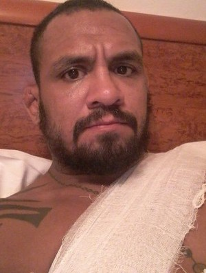 Luiz Besouro desloca o braço