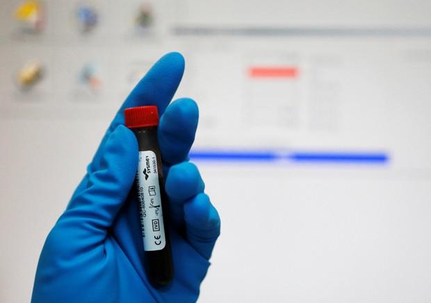Segundo ativista, dados mostram que sangue não foi submetido a uma detecção de HIV (Foto: Sergei Karpukhin/Reuters)