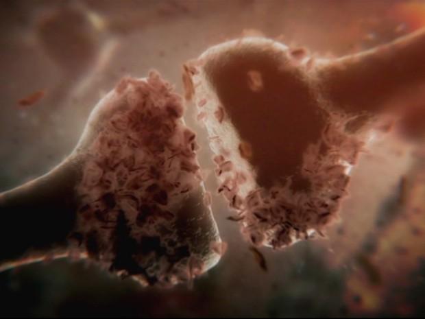 Imagem do filme 'Curando o Alzheimer', produção da BBC (Foto: VerCiência/Divulgação)