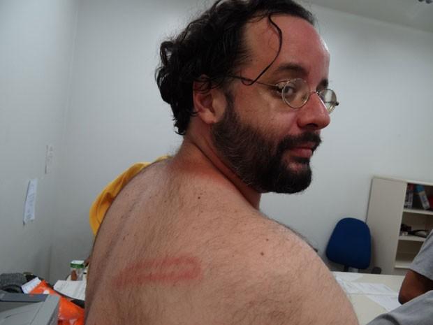 Integrante do grupo Direitos Urbanos, Leonardo Cisneiros, narrou que foi 'encurralado' pelos PMs, que desferiram golpes com cassetetes nas suas costas (Foto: Luna Markman / G1)