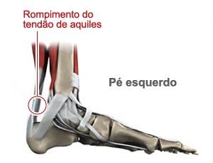 imagem pé esquerdo tendão de aquiles (Foto: Arte esporte)