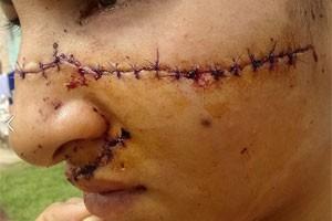 Imagem da jovem agredida foi publicada no Facebook (Foto: Reprodução/Facebook/Yeni Alvarez)