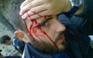 gre-nal 406 grêmio inter internacional final gauchão beira-rio vítima pedrada gremista (Foto: Arquivo pessoal)