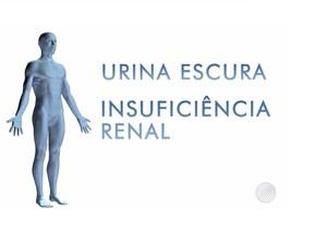 Doença misteriosa causa urina escura e insuficiência renal (Foto: Reprodução/TV Bahia)
