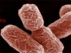 Versão de 'E. coli' alemã era diferente da francesa durante surtos em 2011