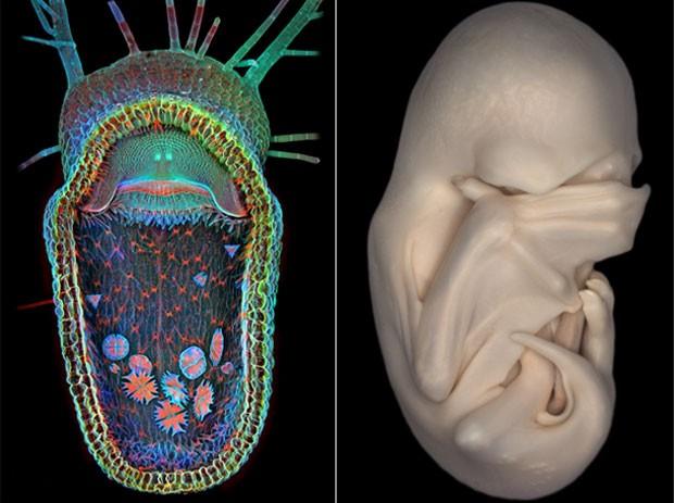 À esquerda, a imagem de uma planta carnívora (Utricularia gibba) bocejando; à direita, um embrião de morcego (Foto: Divulgação/Igor Siwanowicz/Dorit Hockman/2013 Olympus BioScapes Digital Imaging Competition)