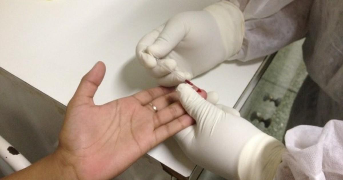 No Amapá, 17 pessoas morreram de Aids em 2014