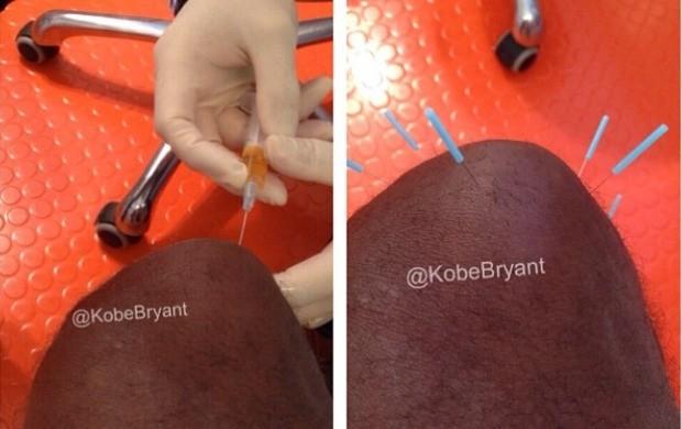 Kobe Bryant mostra foto do tratamento sanguíneo realizado na Alemanha (Foto: Reprodução / Instagram)