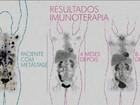 Novidades no tratamento aumentam as chances de cura do câncer