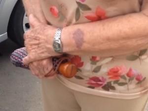 Idosa teve ferido leve no braço após ação do suspeito em Campinas, SP (Foto: Kleber Tomaz/G1)