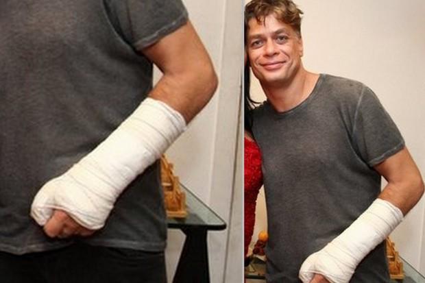 Fábio Assunção em janeiro de 2016 com o braço engessado  (Foto: Anderson Borde/Ag News)