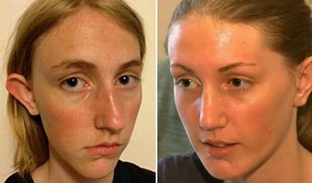 Nadia Ilse, antes e depois da cirurgia. (Foto: BBC)