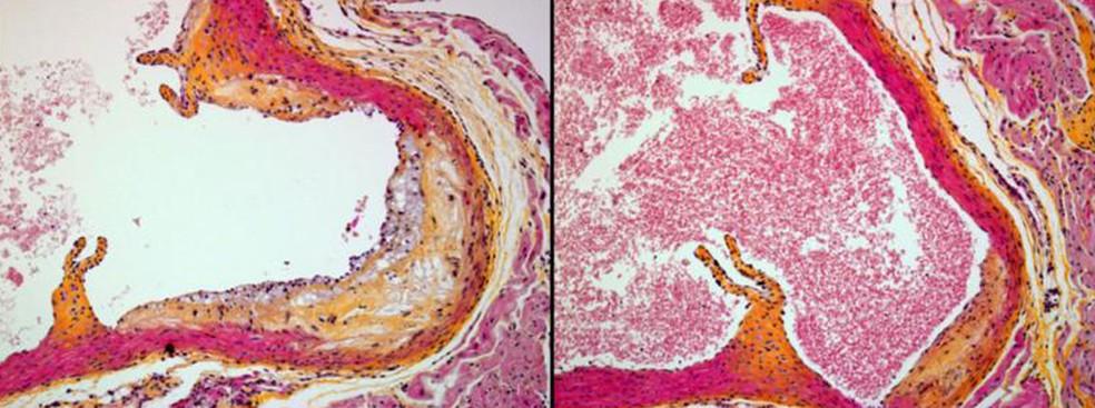 Imagem à direita mostra corte de aorta em camundongo imunizado com AT04A com pouca placa. À esquerda, aorta de camundongo que não foi imunizadao, com formação de placa (Foto: The Netherlands Organisation of Applied Scientific Research/Divulgação)