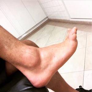 Alexandre Pato tornozelo (Foto: Reprodução/ Instagram)