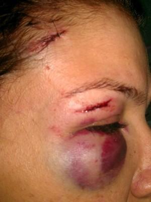 Cantor sertanejo é suspeito de agredir a ex-mulher, em Goiânia (Foto: AgMais)